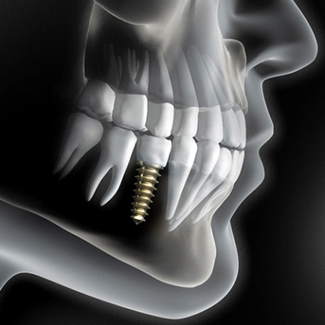 A digital image of a dental implant sitting in the lower arch of the mouth next to two healthy teeth