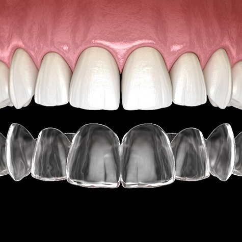 Digital image of a top row of teeth and a customized Invisalign aligner